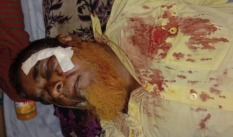 বাগেরহাটে প্রতিপক্ষের হামলায় মোজাম সিকদার গুরুতর আহত